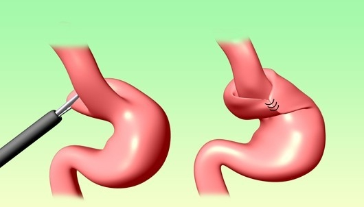 fundoplication-anti-reflux-surgery-in-tamilnadu