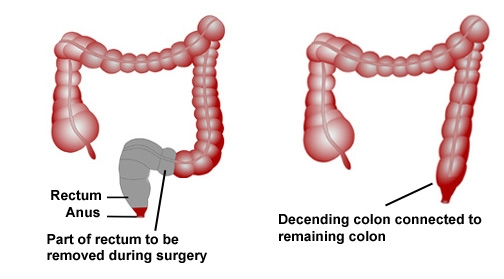 lap-assisted-abdomino-perineal-resection-for-ca-rectum