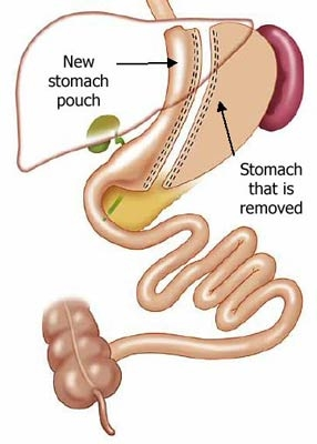 laparoscopic-radical-gastrectomy-for-stomach